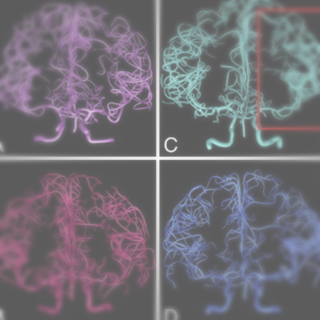 Digital reconstruction and morphometric analysis of human brain arterial vasculature from magnetic resonance angiography.