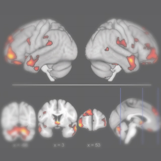 Relationships between gray matter, body mass index, and waist circumference in healthy adults.